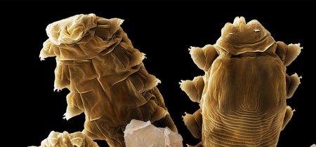 Tu cara está repleta de estos bichos microscópicos que no tienen ano
