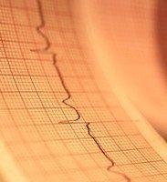 Regenerando miocardio tras un infarto