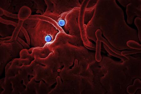 Covid 19 Coronavirus Covid Cell Pandemic Corona Virus 1608797 Pxhere Com