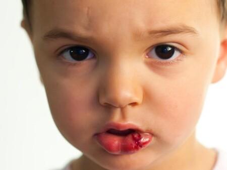 El niño se ha hecho un corte en el labio, ¿cómo curarle?