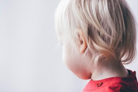 El niño tiene orejas de soplillo, un problema estético frecuente en la infancia