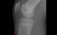 Todo sobre la rodilla (XV): Patologías típicas de adolescentes deportistas