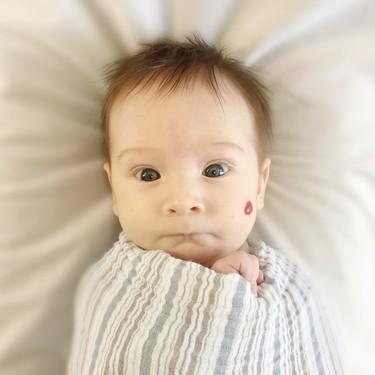 Angiomas o hemangiomas en bebés y niños: por qué se producen y cómo se tratan este tipo de manchas en la piel