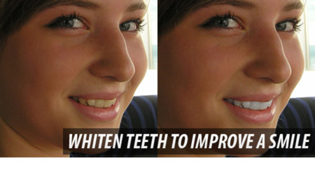 12 19 Whiten Teeth To Improve A Smile In Photoshop Cs4
