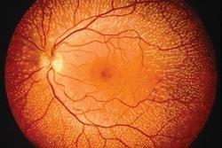 retina20.jpg