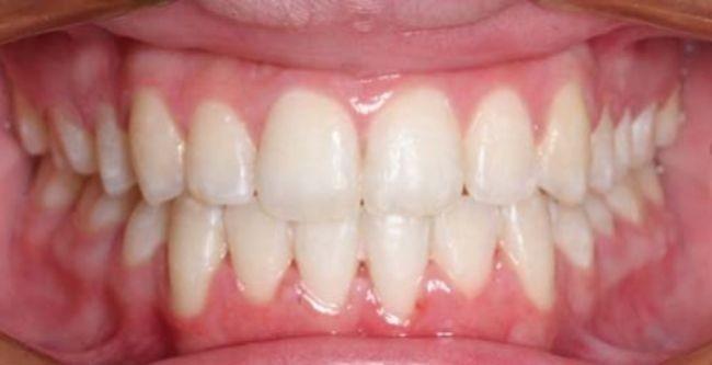 Los cubiertos de tu mesa, ¿responsables de la forma de tu dentadura?