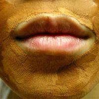 Cuidar la piel de la contaminación