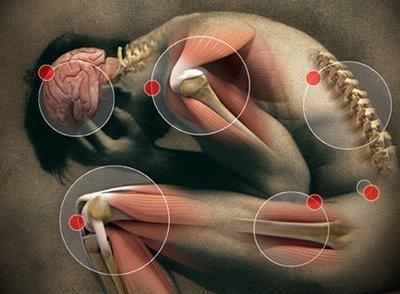 Esquema corporal: autodiagnóstico indispensable para deportistas