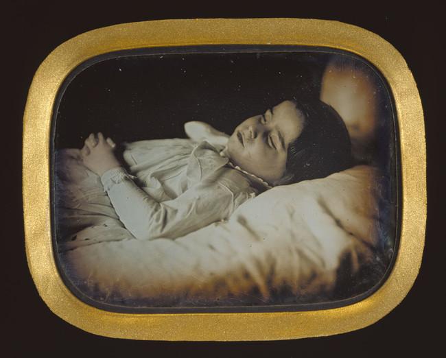 Carl Durheim Postmortem Of A Child Getty 64235