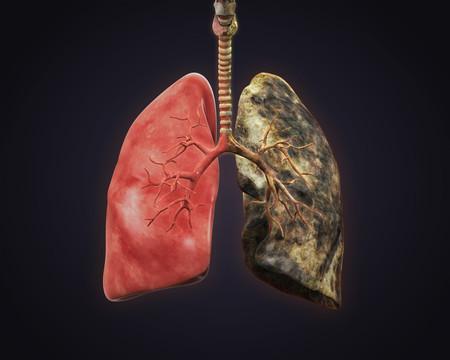 epoc-enfermedad-pulmonar-ejercicio