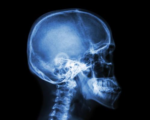 Pruebas médicas para deportistas: estas son las más frecuentes