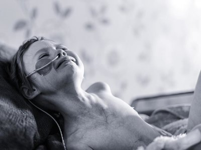 Un padre comparte la cruda imagen de su hija con cáncer, días antes de morir
