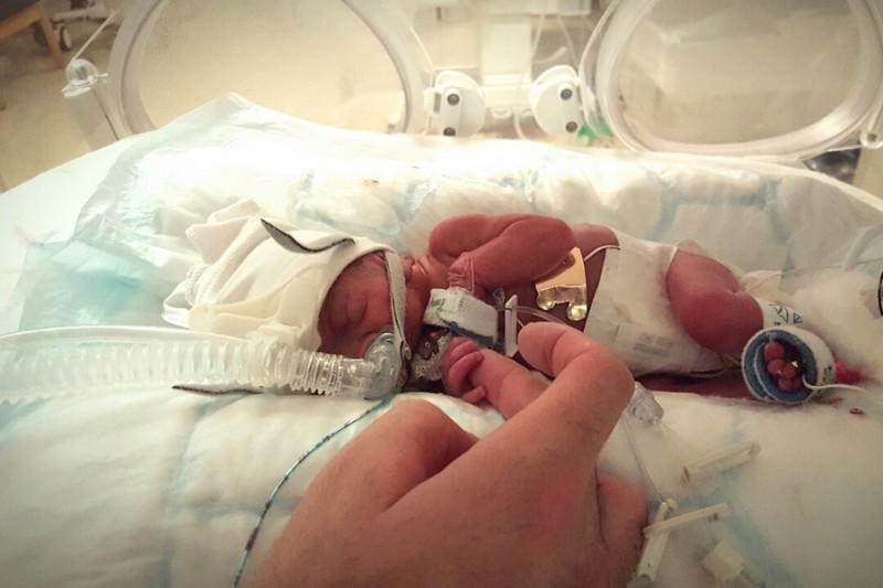 Nacer microprematuro vino al mundo con 27 semanas y 745 gramos y ha logrado sobrevivir - 15 semanas de embarazo cuantos meses son ...