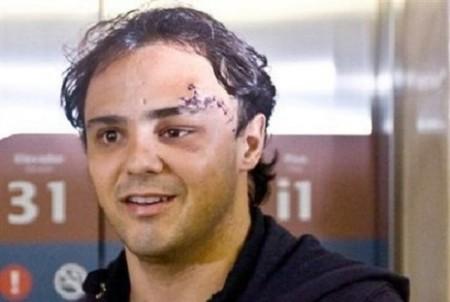Felipe Massa estará lejos de los circuitos hasta 2010