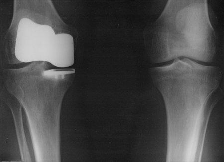 Maneras más habituales de provocarnos una lesión de ligamentos en la rodilla