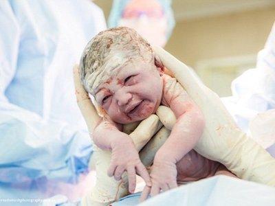 ¿Quieres sacar a tu bebé con tus propias manos en la cesárea? Una madre lo hace y lo documenta en fotos