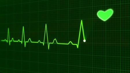 Un electrocardiograma permite a la inteligencia artificial predecir la probabilidad de que alguien muera durante el siguiente año