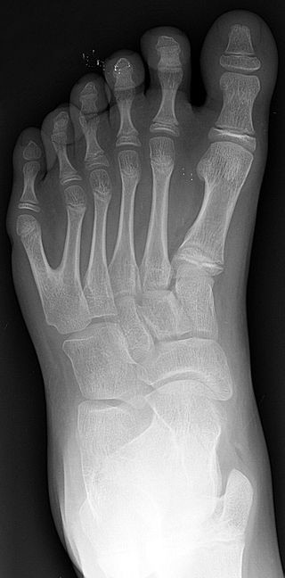 320px Polydactyly 01 Lfoot Ap