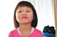 ¿El acné en los jóvenes se cura con una aplicación en el móvil?