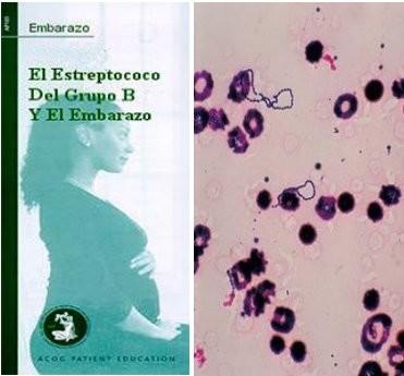 Folleto informativo sobre la infección por estreptococo B y embarazo