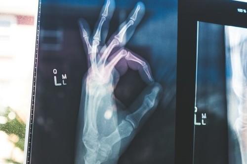 La importancia de la densidad ósea: así puedes cuidar la salud de tus huesos