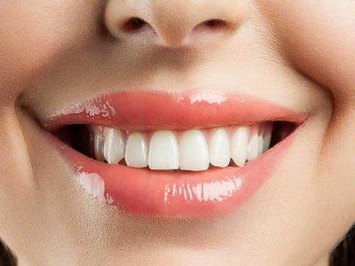 Si quieres una sonrisa perfecta restringe el consumo de estos alimentos