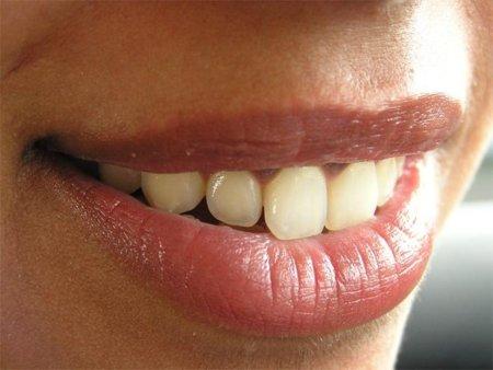 Los problemas de dientes en los deportistas