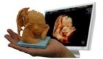 Baby3Dprint: una escultura del feto a partir de la ecografía, ¿la querrías?