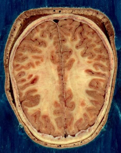 Nueva técnica para suprimir los efectos de la esquizofrenia: resincronización de neuronas