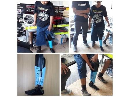 Protesis