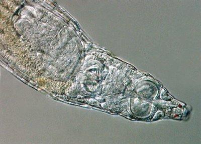 Cuando no te gusta el sexo, lo mejor es volar a otro sitio: la Bdelloidea
