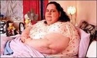 Cirugía para obesos