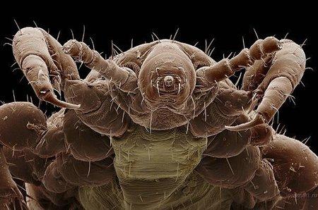 Singularidades extraordinarias de animales ordinarios (XLI): el piojo