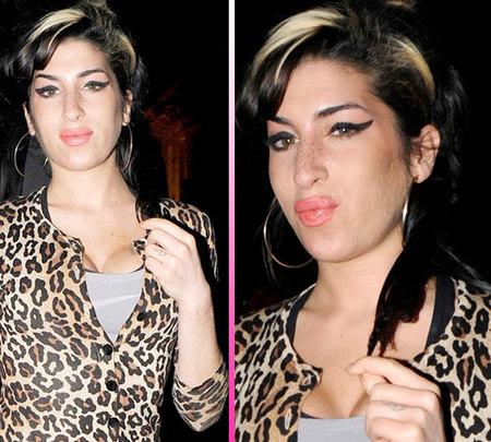 Amy Winehouse ahora es adicta a la cirugía