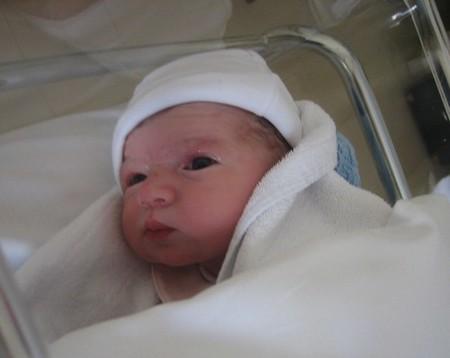 Pomada en los ojos del recién nacido