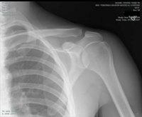 Artrosis de hombro, un mal que se puede prevenir