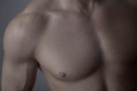 Reducción mamaria en hombres