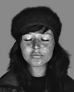 UV Beauties: Retrato de la piel imperfecta