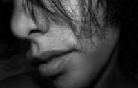 Labios agrietados: ¿por qué se dan? y ¿cómo evitarlo de forma natural?