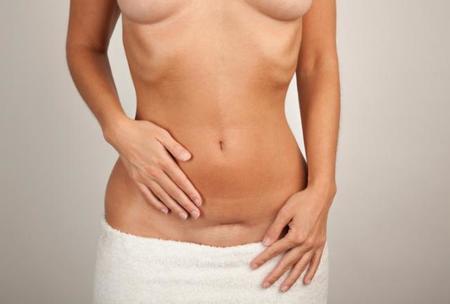 Aprovechar el parto para hacerse cirugía es un error que cometen muchas famosas