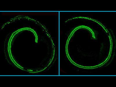 Un avance mayúsculo frente a la sordera congénita: CRISPR consigue frenar la degeneración del oído en ratones vivos