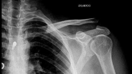 La importancia de anticiparse a la osteoporosis