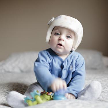Cinco sencillos consejos para prevenir la plagiocefalia (cabeza plana) en el bebé