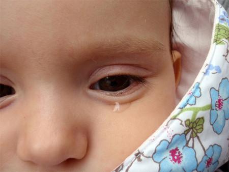 Angustia de separación del bebé