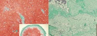 A partir de células madre se ha logrado cultivar cartílago