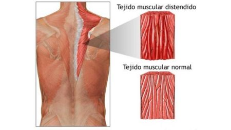 que es distension muscular en el hombro