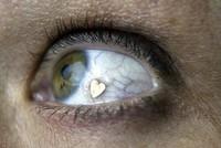 Modas que nunca entenderé: insertar joyas en los ojos