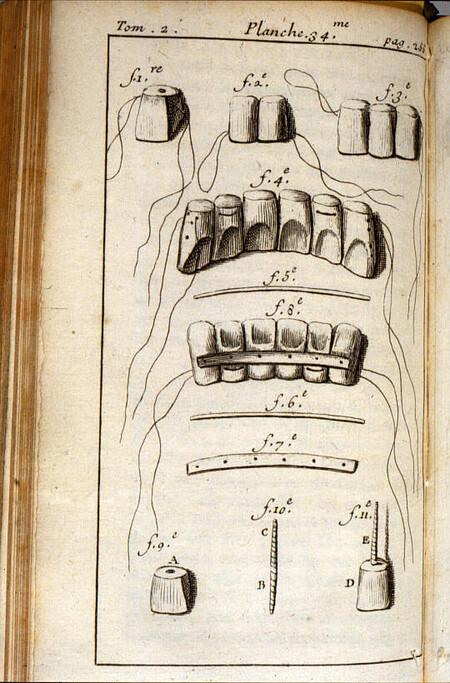 Diagramme De Pierre Fauchard Sur La Restauration Des Dents