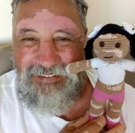 Vitilinda, la muñeca con manchas en la piel que un abuelo tejió para arrancar una sonrisa a su nieta con vitíligo