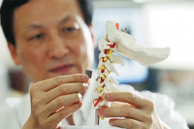 Otro pequeño paso de la impresión 3D en medicina: una vértebra para un niño de 12 años